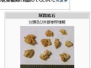尿路結石の写真(ウィキペディアより)